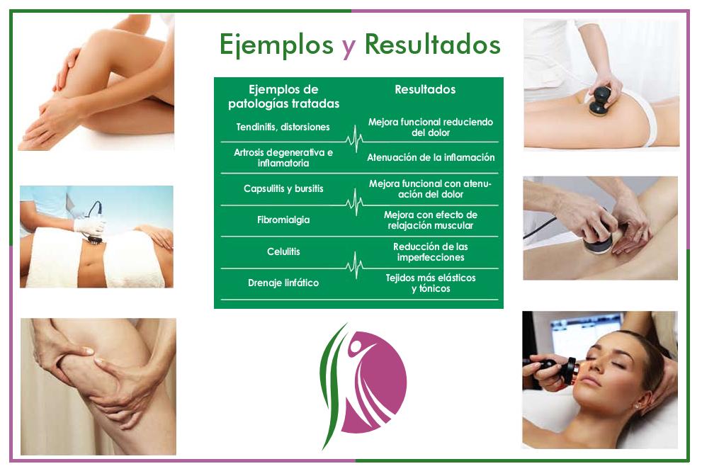 ejemplos y resultados cavitacion - ultrasonido